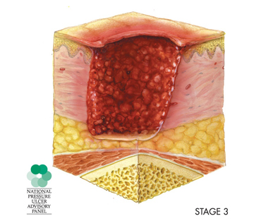 A diagram depicts a stage 3 pressure injury, in which the wound includes the epidermis and dermis and extends into subcutaneous, or fatty, tissue.