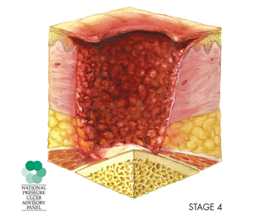A diagram depicts a stage 4 pressure injury, in which the wound extends through the fatty tissue and into the muscle tissue.