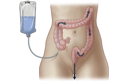 Colostomy as a Last Resort
