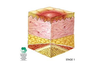 Skin Care & Pressure Sores