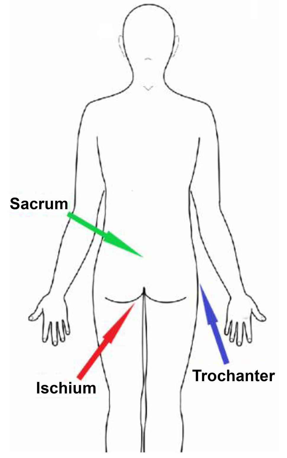 A diagram shows the location of the ischium, sacrum, and trochanter bones on the body.