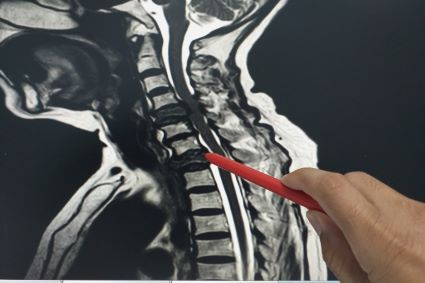 Person pointing to a x-ray of a spine